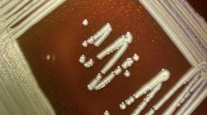 Elizabethkingia anophelis growing on a blood agar plate.