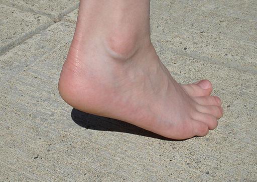 Girl's heel, Stilfehler