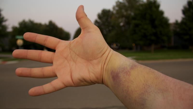 bruised wrist