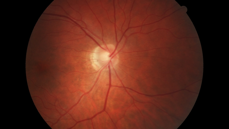 Inside of a Retina with Eye Issue
