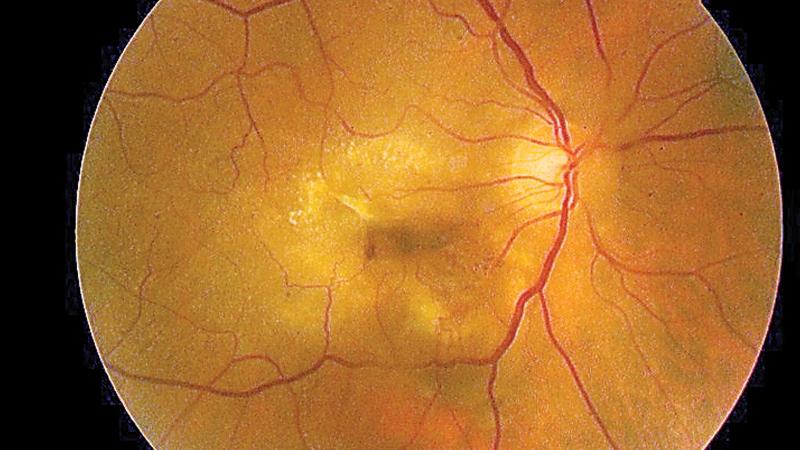 Eye Showing Macular Degeneration
