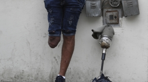 A man with an amputated leg