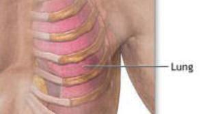 Read full article: Costochondritis