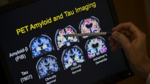 PET scan of Alzheimer's disease