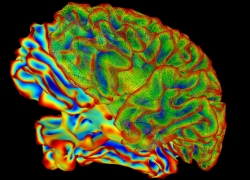 A colorful image of a whole brain against a black background.