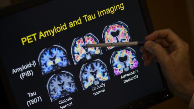 PET scan of Alzheimer's disease