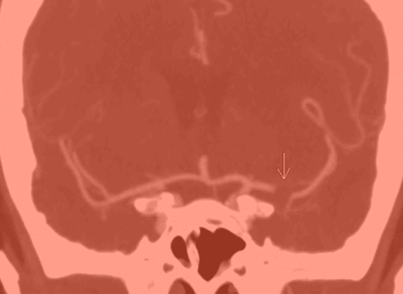 stroke, scan