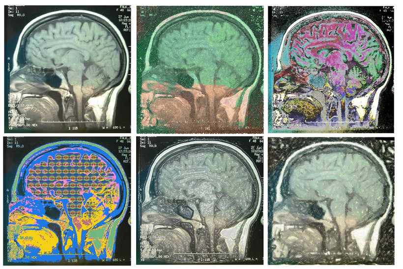 hand colored MRI brain scan images